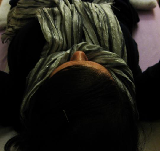 Acu Head